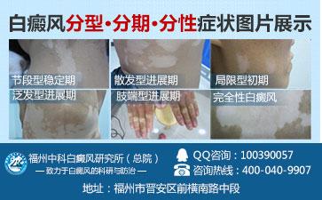 皮肤上有白斑怎么治疗
